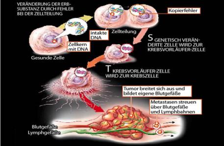 darmkrebs-entstehung